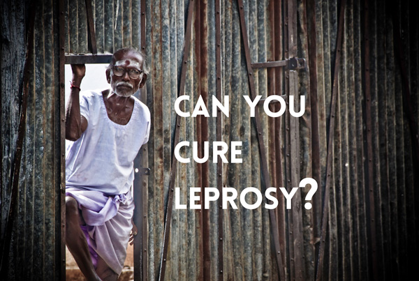 Can You Cure Leprosy?