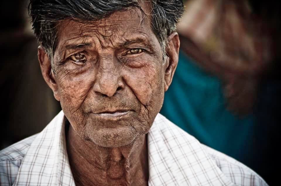 Leprosy: What It Is, What It's Not, and How You Can Help